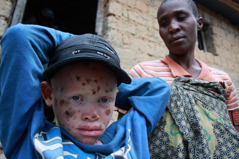 albino i afrika